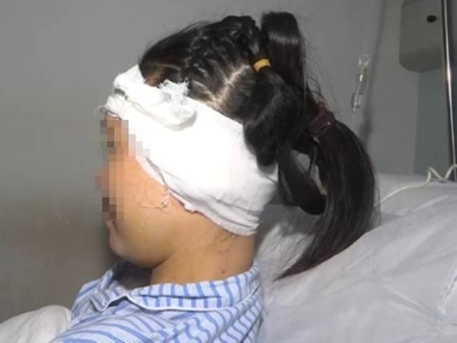 路邊攤打耳洞5年後 女子耳朵腫脹長瘤   華視新聞