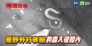 【晚間搶先報】野外打赤腳 5歲男童腸道染鉤蟲