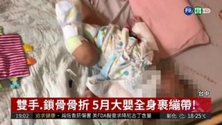 5月大嬰兒骨折 托嬰中心稱不知