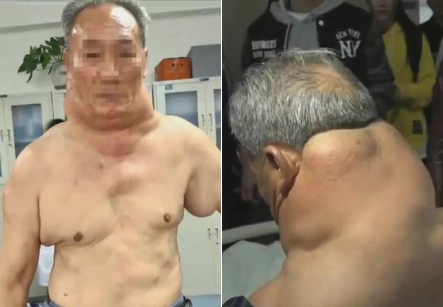 """該戒了! 陸男每天喝""""1公斤白酒"""" 身體竟然變形"""