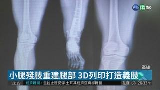 "3D列印製義肢 身障移工重獲""膝""望"