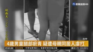 4歲男童腿部瘀青 疑遭母親同居人虐打