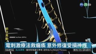 瑞士脊椎電刺激療法 讓癱瘓重新站起!