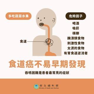 罹食道癌高危險群 高湯熱飲是主因
