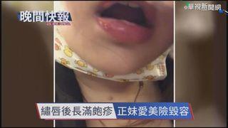 【晚間搶先報】疑免疫力下降 女繡唇誘發皰疹感染!