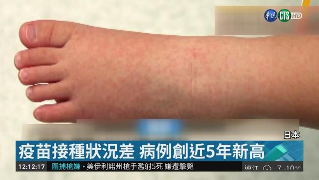 大阪麻疹增至46例 逾去年病例3倍 | 華視新聞