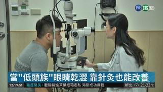 愛用3C乾眼症年輕化 針灸改善症狀