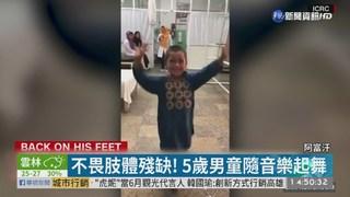 5歲男童裝義肢跳舞... 全球網民不捨