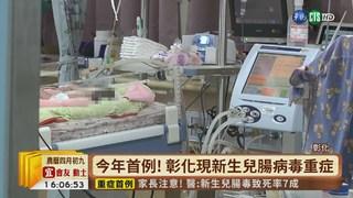 【台語新聞】今年首例! 彰化現新生兒腸病毒重症