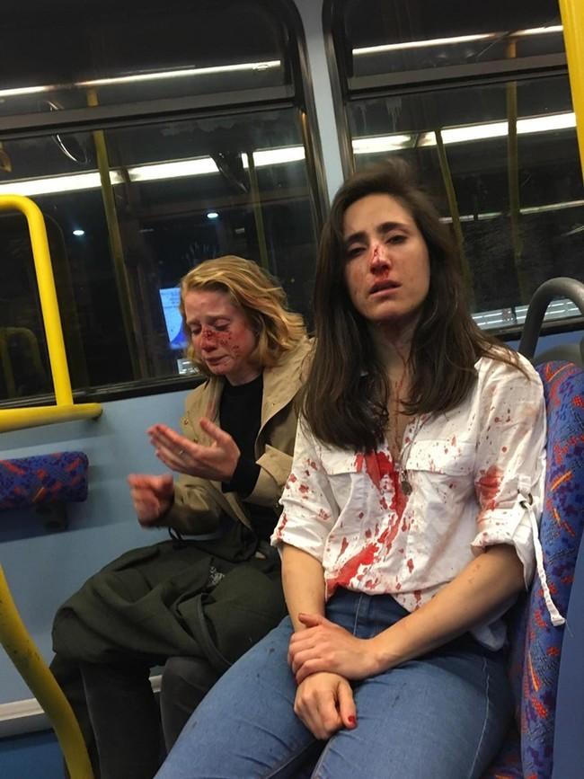 英國女同志遭毆濺血 「仍會勇敢堅持性向」   華視新聞