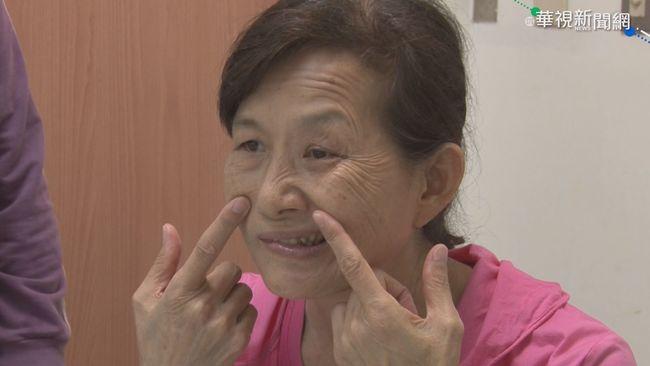 婦罹帶狀性皰疹 臉歪眼.嘴閉不起來 | 華視新聞