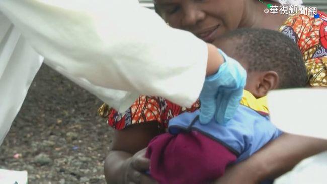 半年奪6千條命! 剛果麻疹疫情蔓延   華視新聞
