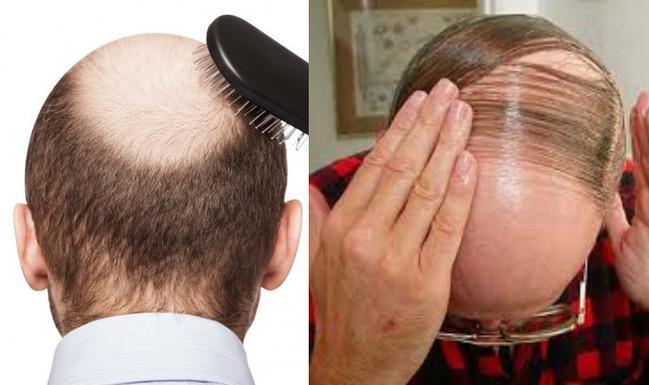 停經、禿頭有解?!中研院:厭氧菌可逆轉荷爾蒙 | 華視新聞