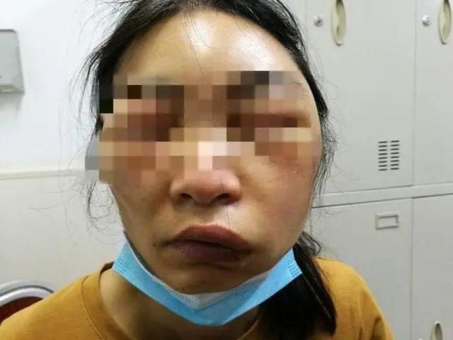 睡覺被蟲咬起床變「饅頭人」!醫:嚴重恐窒息 | 華視新聞
