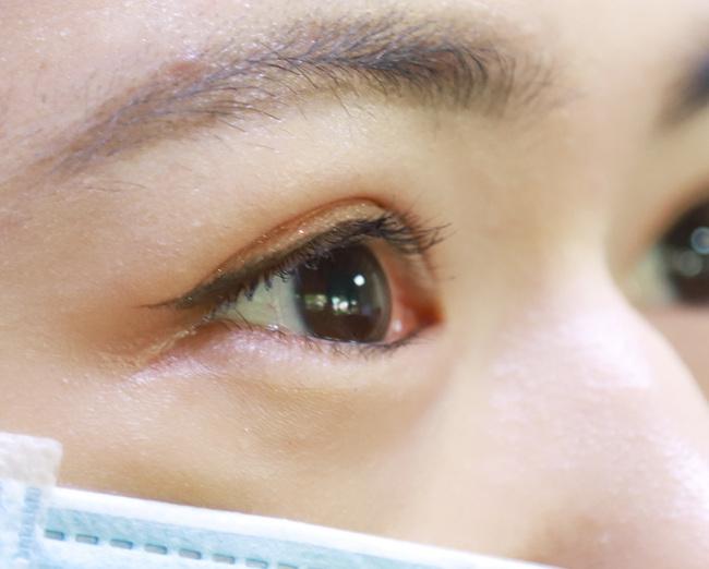 女高中生常點眼藥水 「這成分」害眼壓飆高險失明 | 華視新聞