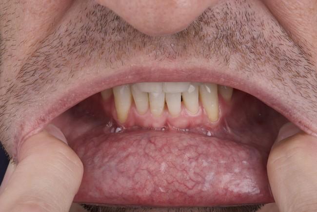 口腔癌五大徵兆!「這件事」致癌性最強 | 華視新聞