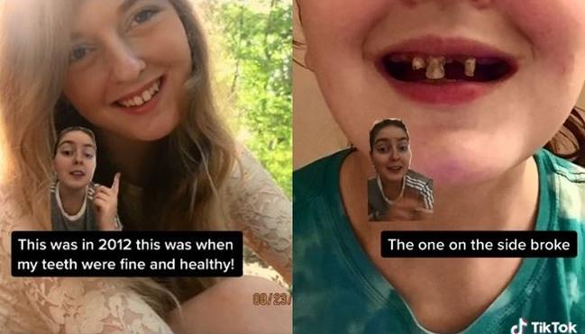 每天喝汽水不刷牙! 她慘剩爛牙…抖音勸世片暴紅   華視新聞