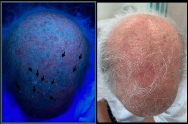 皮膚長斑.發癢擦藥卻無效 醫:恐為皮膚癌前病變   華視新聞