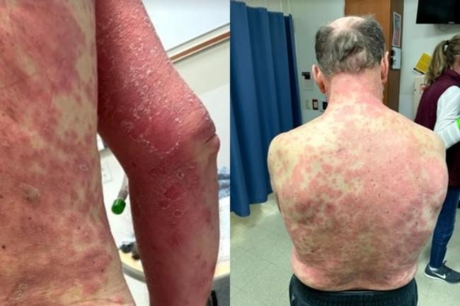 嬌生疫苗出包? 美國男子全身紅疹、四肢腫痛 | 華視新聞