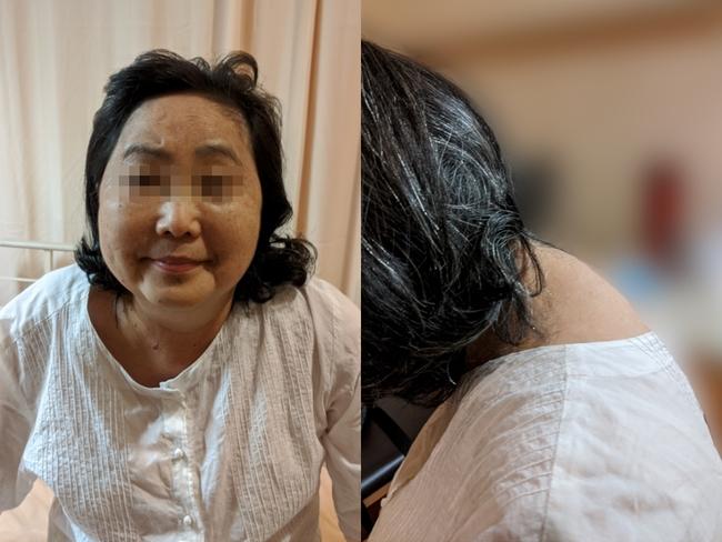63歲婦人「變胖無力又高血壓」 竟罹罕見庫欣氏症   華視新聞