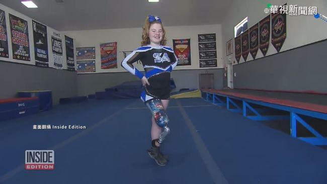 「義肢」獨秀! 美11歲啦啦隊女孩展絕技 | 華視新聞