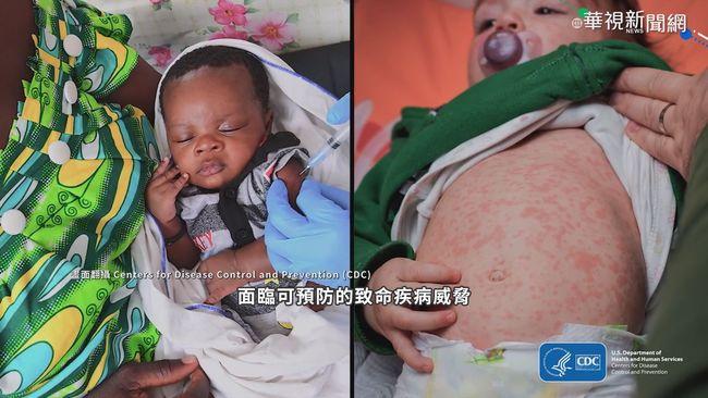 疫情打亂例行接種 葉門.巴基斯坦爆麻疹 | 華視新聞