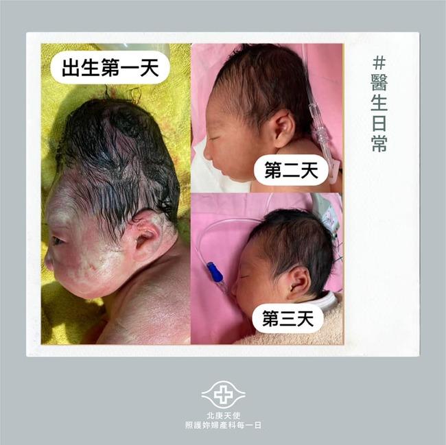 寶寶出生「頭顱超長」阿嬤急壞 醫勸:快點拍照   華視新聞