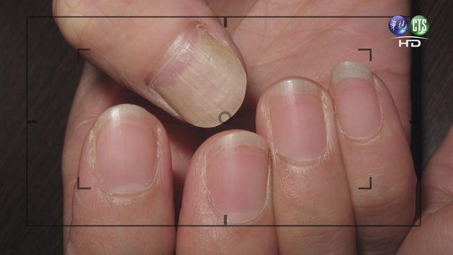免搶買血氧機! 醫師傳授「看指甲」簡單檢測法 | 華視新聞