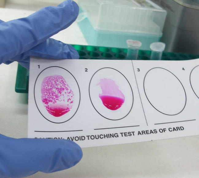 愛犬出國做犬布氏桿菌抗體檢測 畜衛所:市售快篩無用 | 華視新聞