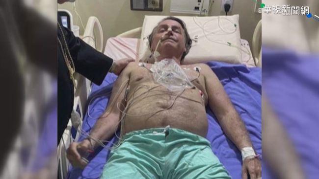 不明原因打嗝 巴西總統波索納洛住院 | 華視新聞